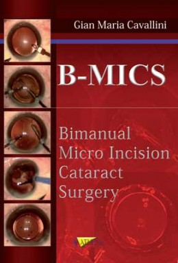 B-MICS BIMANUAL MICRO INCISION CATARACT SURGEY